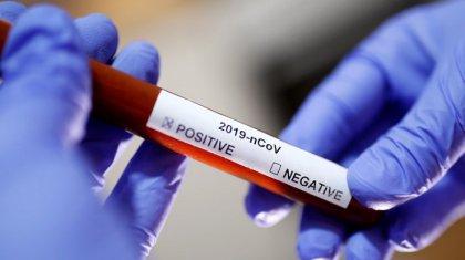 Елімізде коронавирус жұқтырған жаңа деректер тіркелді