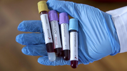 Коронавирус: БҚО-да індетке шалдыққан соңғы 5 науқастың төртеуі Ресейден келген
