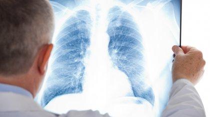 Қазақстанда 195 адамнан пневмония анықталды