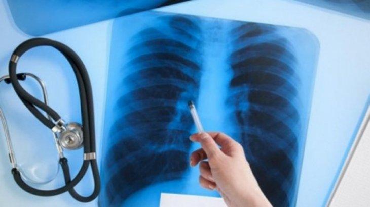 ШҚО-да туберкулездің асқынған түрімен ауыратын 6 адам іздеуде жүр