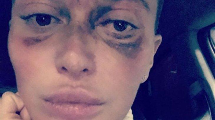 Девушка ослепла на один глаз после инъекции у косметолога в Москве
