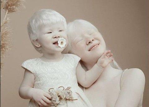 Альбинизмге шалдыққан арулардың арманы...