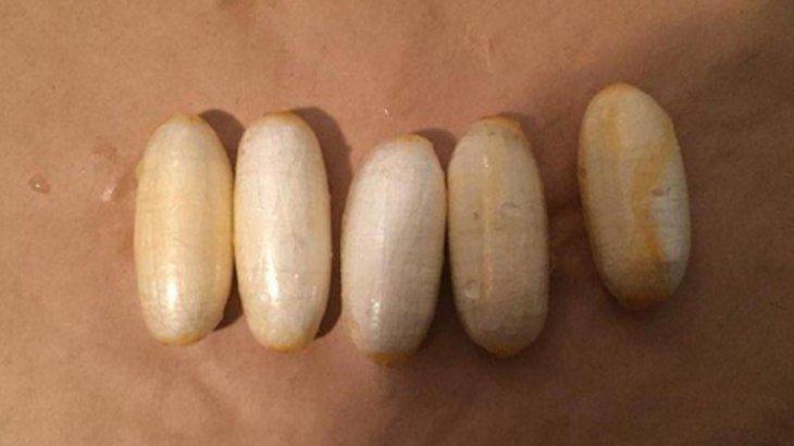 Күдіктінің асқазан-ішек жолдарынан 460 грамм кокаин табылды