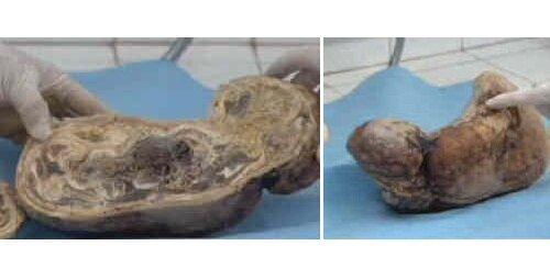 Жүкті әйел құрсақтағы сәбиін 46 жыл көтеріп жүрген