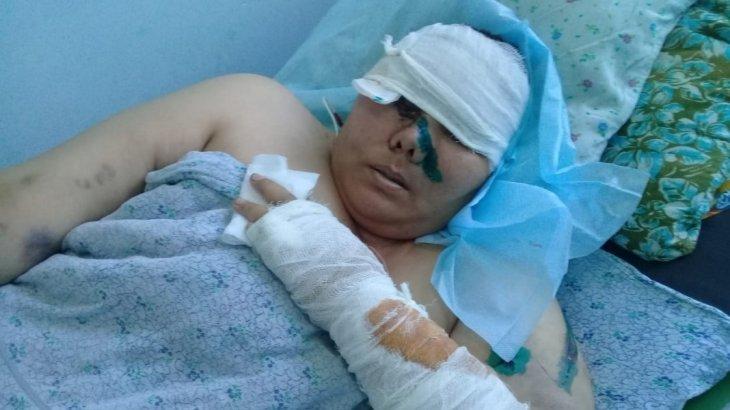 «Өлтіремнен басқаны айтпайды»: түркістандық азамат әйелін балталап тастады