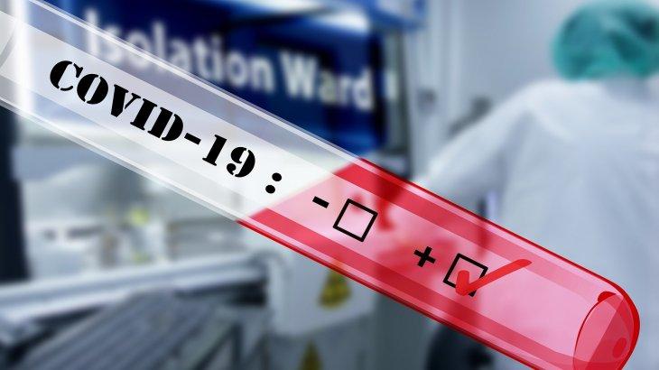 Қазақстанда өткен тәулікте 72 адам коронавирустан емделіп шықты