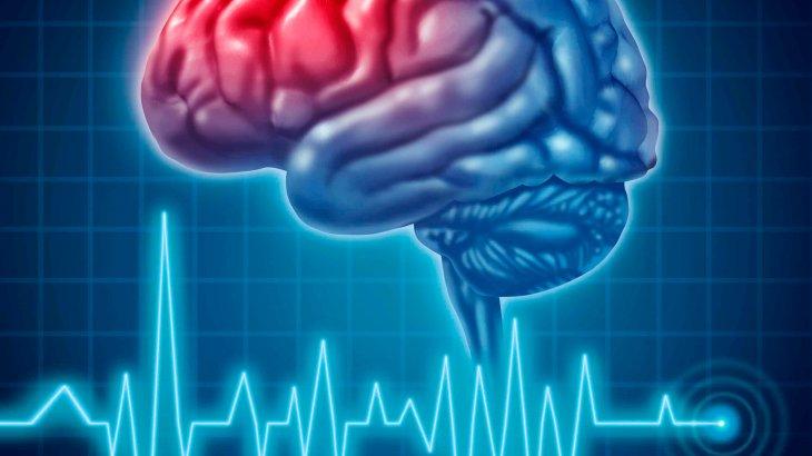 Инсульттің дамуына ықпал ететін факторлардың көбіне әсер етуге болады