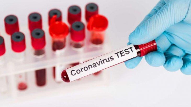 Елімізде 1 желтоқсан күні 770 адамнан коронавирус анықталды