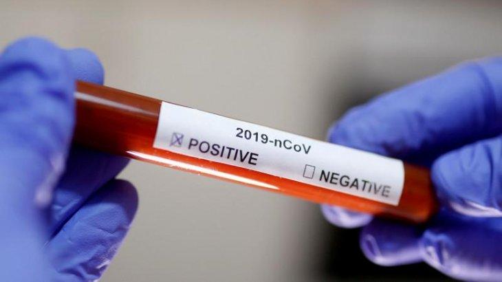 Өткен тәулікте 739 адамнан коронавирус анықталды