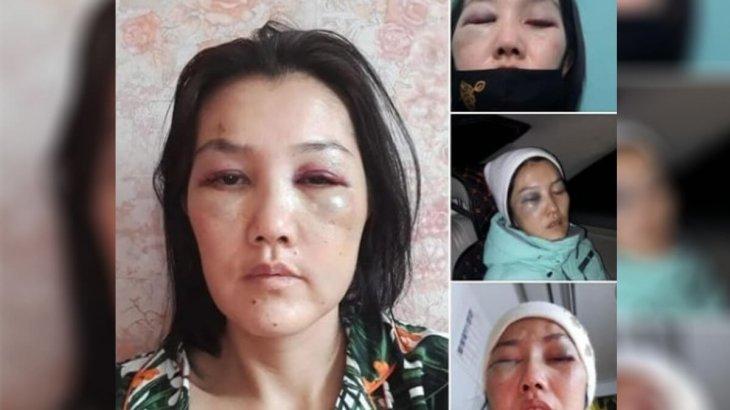 Астаналық келіншек экс-күйеуінен зорлық көріп жүргенін айтып, жұрттан көмек сұрады