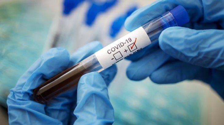 Елімізде бір тәулікте 772 адамнан коронавирус анықталды
