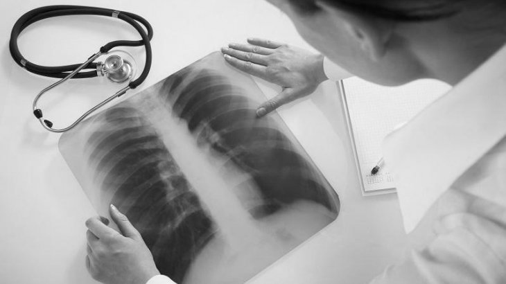 Коронавирус пневмониясынан 3 адам көз жұмды