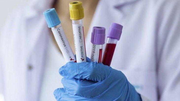 Елімізде бір тәулікте 2122 адамнан коронавирус анықталды