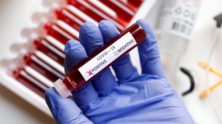 Елімізде бір тәулікте 2830 адамнан коронавирус анықталды