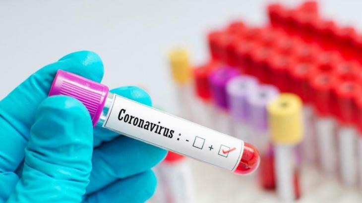 Елімізде бір тәулікте 2549 адамнан коронавирус анықталды