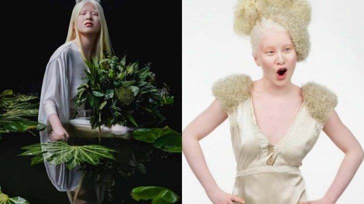 «Түрінен қорқып, тастап кеткен»: Ата-анасы бас тартқан альбинос-қыз танымал сән журналына шықты