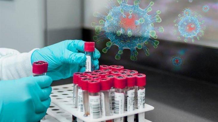 Елімізде бір тәулікте 1248 адамнан коронавирус анықталды