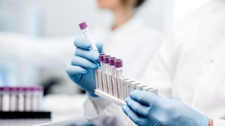 Елімізде бір тәулікте 2618 адамнан коронавирус анықталды