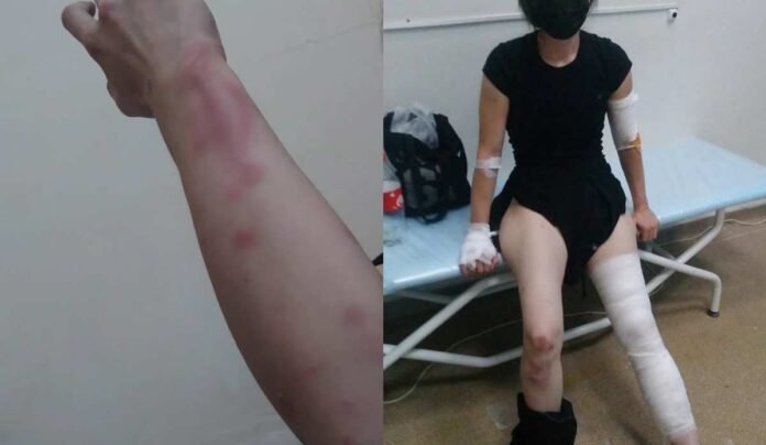 «Аяқ-қолымды сындырды»: Алматылық әйел полицейлерден жәбір көргенін айтты