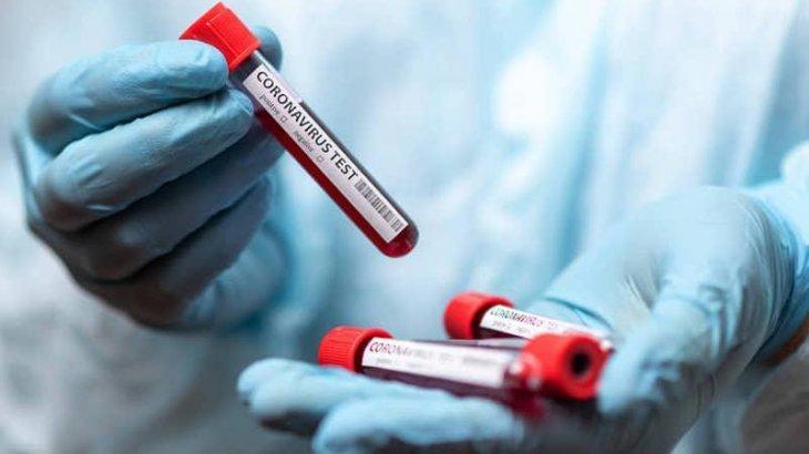 Елімізде бір тәулікте 2192 адамнан коронавирус анықталды